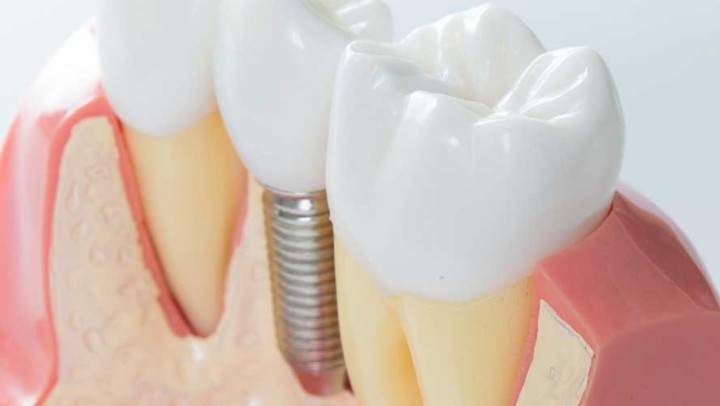 implantologia-dentale5-7940b09f9c