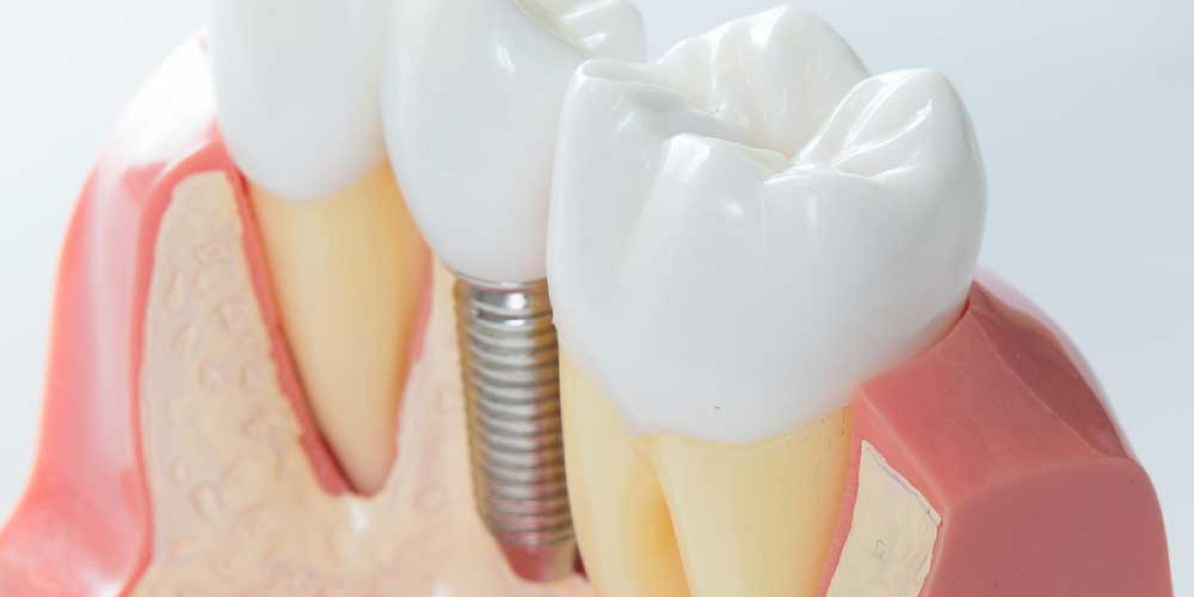 implantologia-dentale5-7940b09f9c