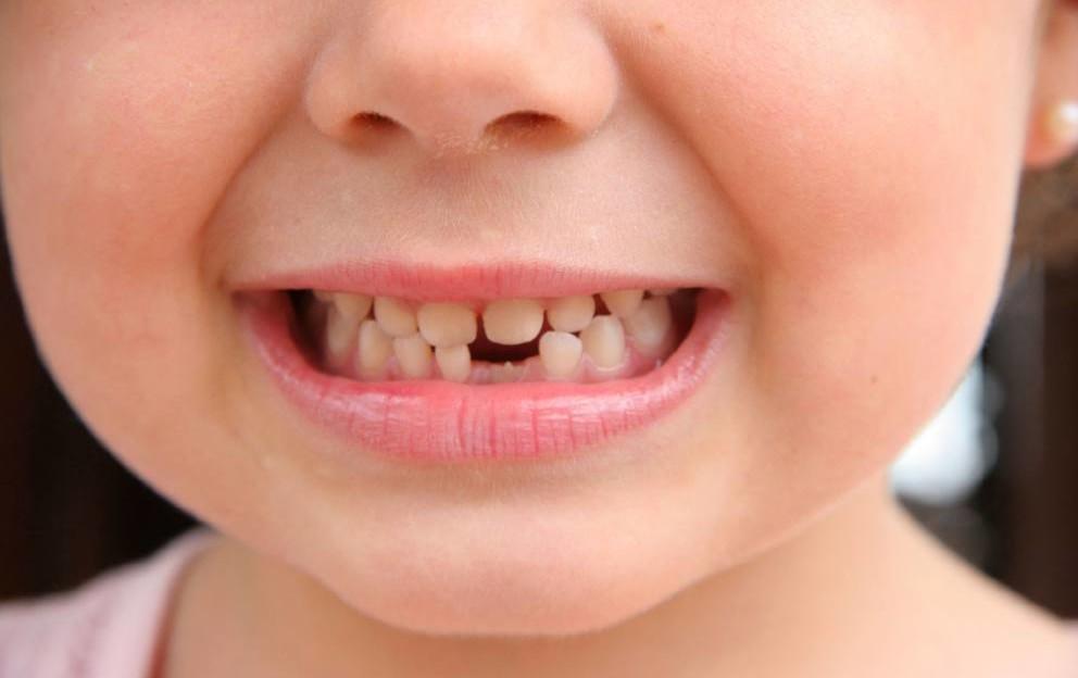 senza-dente_MGZOOM