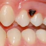 lesione pigmentata