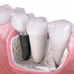 impianto-dentale-senza-chirurgia-1140x641
