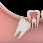 estrazione-del-dente-del-giudizio
